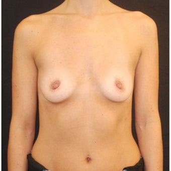 35-44 year old woman treated with Breast Implants before 1687141