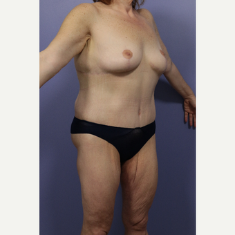 25-34 year old woman treated with Body Lift after 2848341
