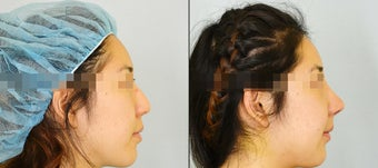 Asian Rhinoplasty before 1090561