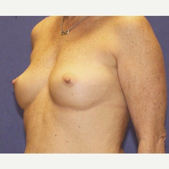 Breast Augmentation before 1763179