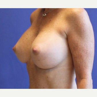 Breast Augmentation after 1763179