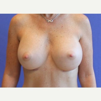 Breast Augmentation 1763179