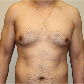 35-44 year old man treated with Male Breast Reduction before 3215426