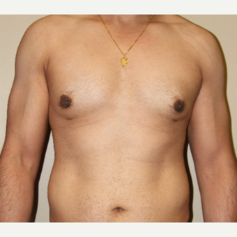 35-44 year old man treated with Male Breast Reduction after 3215426