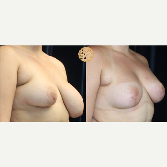 18-24 year old woman treated with Breast Augmentation for Asymmetry after 3200135