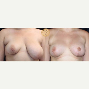 18-24 year old woman treated with Breast Augmentation for Asymmetry before 3200135