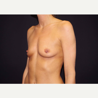 25-34 year old woman treated with Breast Implants before 3441706