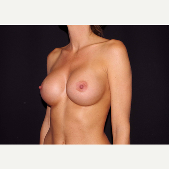 25-34 year old woman treated with Breast Implants after 3441706