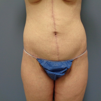 35-44 year old woman treated with Body Lift after 3480837