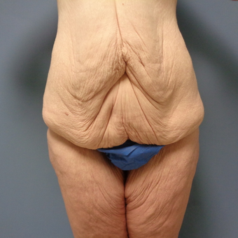 35-44 year old woman treated with Body Lift before 3480837