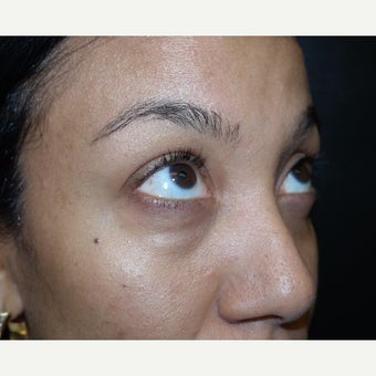 35-44 year old woman treated with Juvederm before 2401076