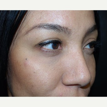 35-44 year old woman treated with Juvederm after 2401076
