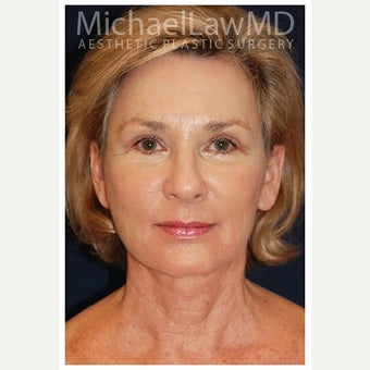 55-64 year old woman treated with Cheek Lift after 1550678