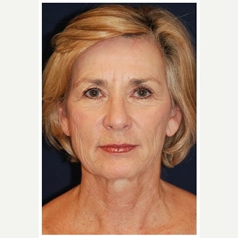 55-64 year old woman treated with Cheek Lift before 1550678
