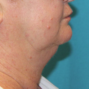 55-64 year old woman treated with CoolSculpting after 3059708