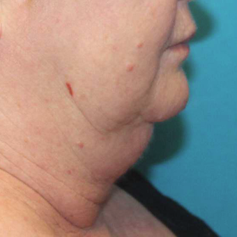 55-64 year old woman treated with CoolSculpting before 3059708