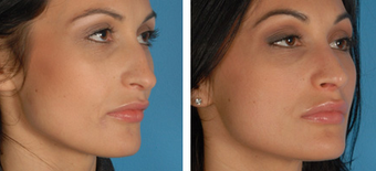 Revision Rhinoplasty before 1208283