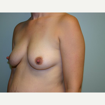 Breast Augmentation before 3562053