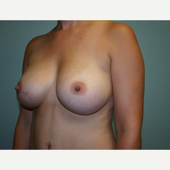 Breast Augmentation after 3562053