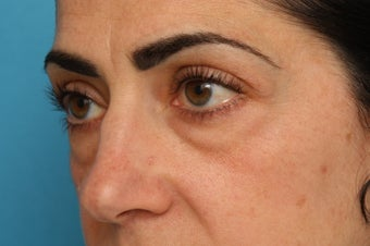 Lower Eyelid Surgery, Specialized Blepharoplasty to Remove Circles (lid-cheek junction deformities; tear trough) and Eyelid Puff 375321