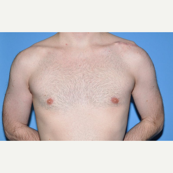 Bilateral Gynecomastia Correction after 2969846