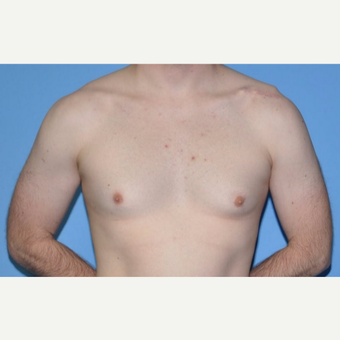 Bilateral Gynecomastia Correction before 2969846