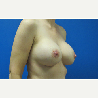 550cc ultra high profile breast implants after 3370846