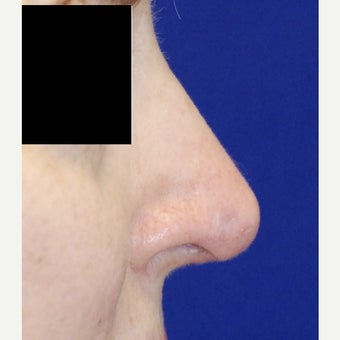 45-54 year old woman treated with Revision Rhinoplasty after 2122077