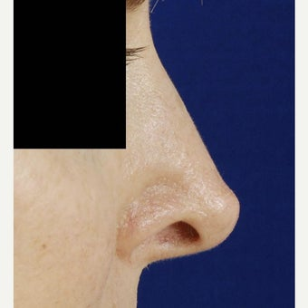 45-54 year old woman treated with Revision Rhinoplasty before 2122077