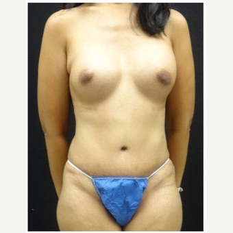 45-54 year old woman treated with Mommy Makeover after 3043497
