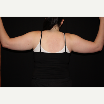 25-34 year old woman treated with Arm Liposuction before 3186595