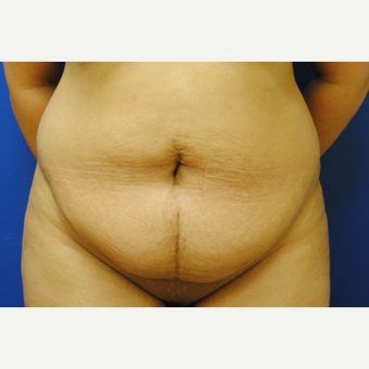 35-44 year old woman treated with Tummy Tuck before 3299861