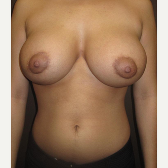 18-24 year old woman treated with Breast Implants after 3418025