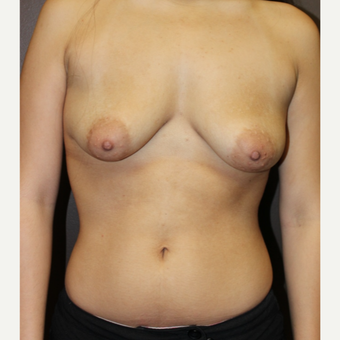 18-24 year old woman treated with Breast Implants before 3418025