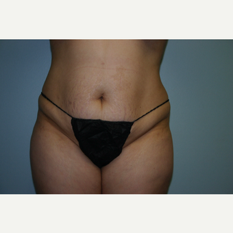 18-24 year old woman treated with Tummy Tuck before 3340202