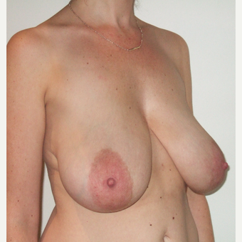 35-44 year old woman treated with Breast Reduction before 3127588