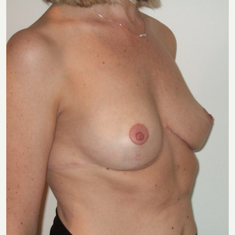 35-44 year old woman treated with Breast Reduction after 3127588