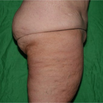 55-64 year old woman treated with Laser Liposuction before 2075197