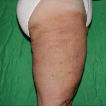 55-64 year old woman treated with Laser Liposuction after 2075197