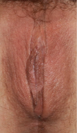 Vaginoplasty/Labiaplasty after 3748967