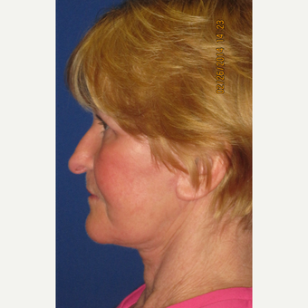 65 year old woman treated with Face Lift, Upper Lid Blepharoplasty, and Fractional CO2 Laser after 3429382