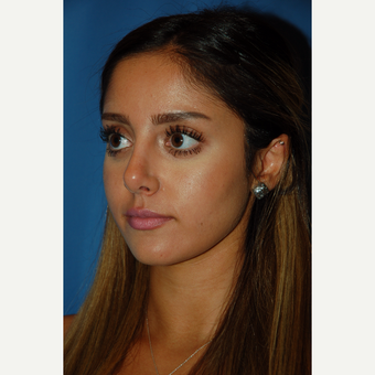18-24 year old woman treated with Rhinoplasty after 3288876