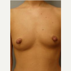 18-24 year old woman treated with Breast Implants before 3107987
