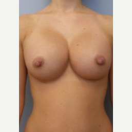 18-24 year old woman treated with Breast Implants after 3107987