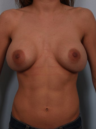 Breast Augmentation Revision before 699884