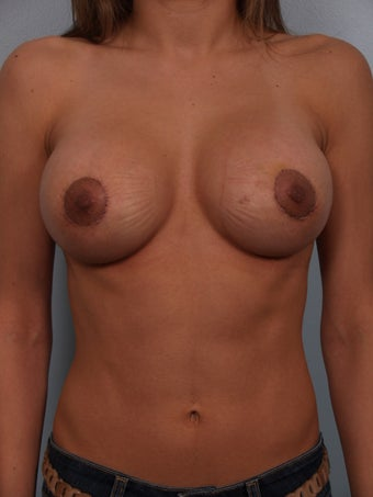 Breast Augmentation Revision after 699884