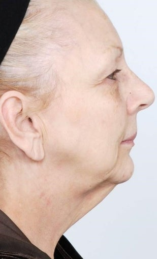 55-64 year old woman treated with Neck Lift before 1561443