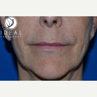 55-64 year old woman treated with Lip Augmentation before 2725403