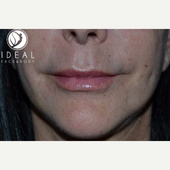 55-64 year old woman treated with Lip Augmentation after 2725403