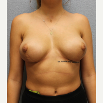18-24 year old woman treated with Breast Lift after 3424371